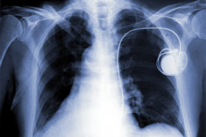 Implanted pacemaker