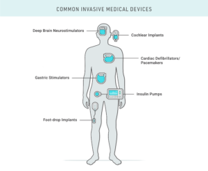 Types of common invasive medical devices